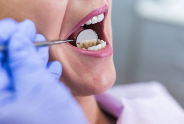 Dental Crowns Sydney