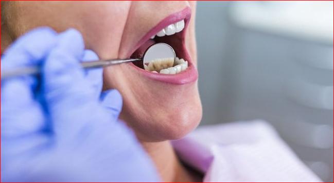 Dental Crowns Sydney