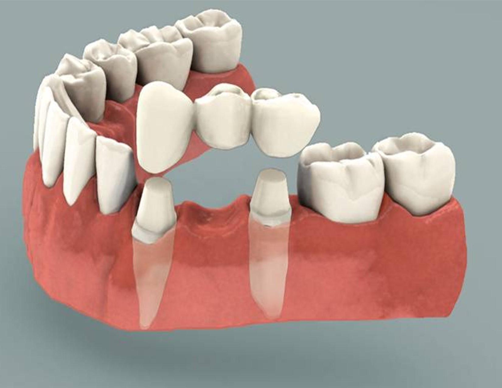 Dental Crowns Newcastle