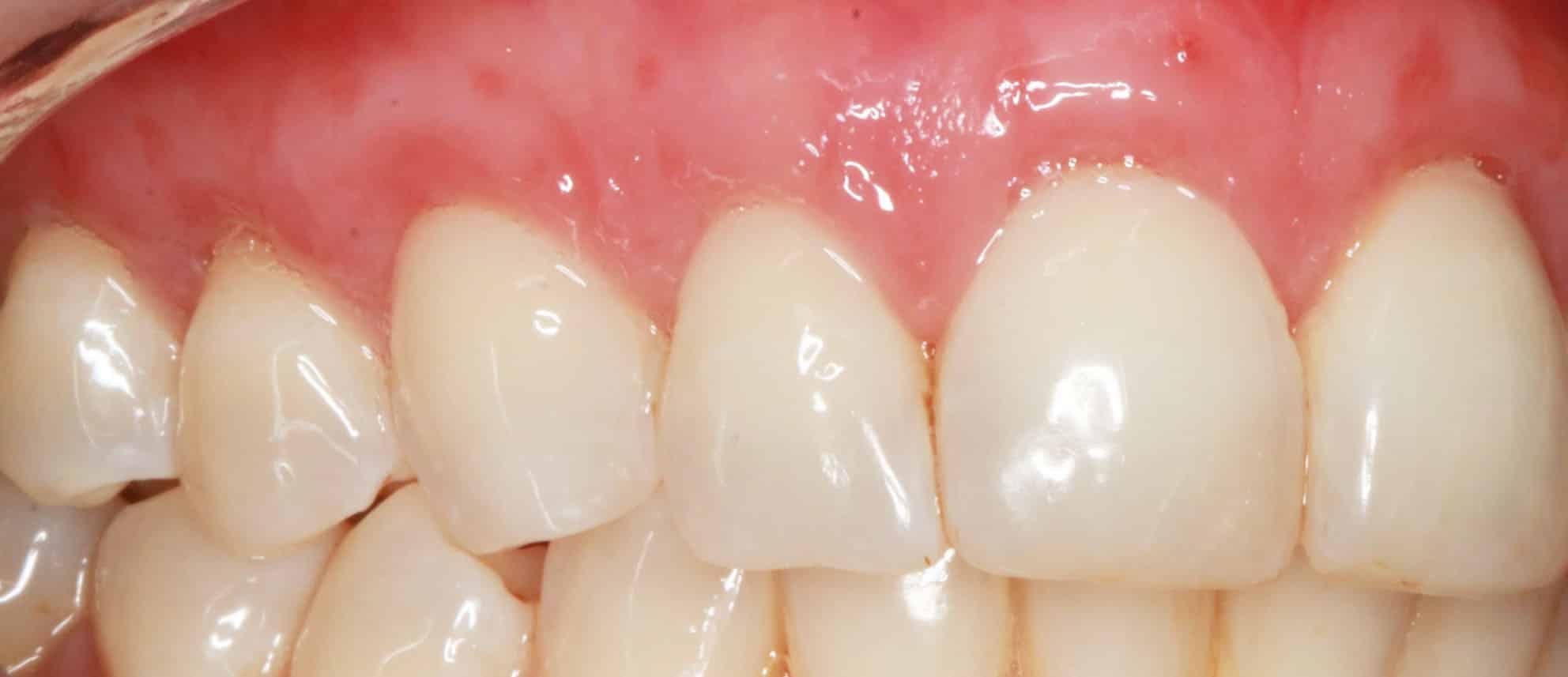 Teeth Veneers Gold Coast