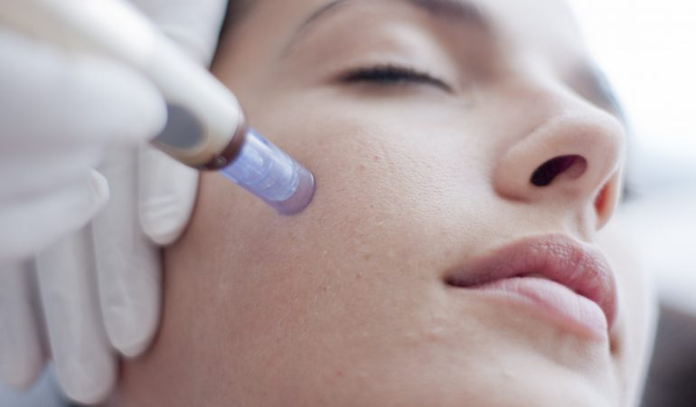 Needling Skin Treatment