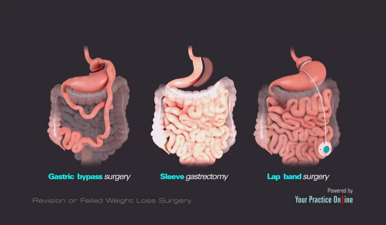 Gastric Bypass Sleeve