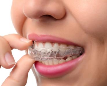 Invisalign Dentist Ottawa